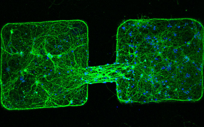 Tiny, magnetically controlled robots coax nerve cells to grow connections.